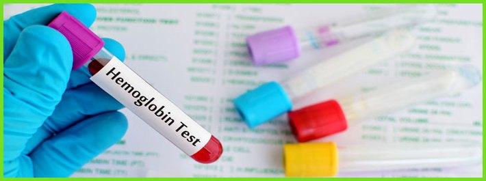 Анализ на гемоглобин