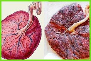 Старение плаценты